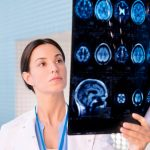 Reasons why you might need to visit a neurologist
